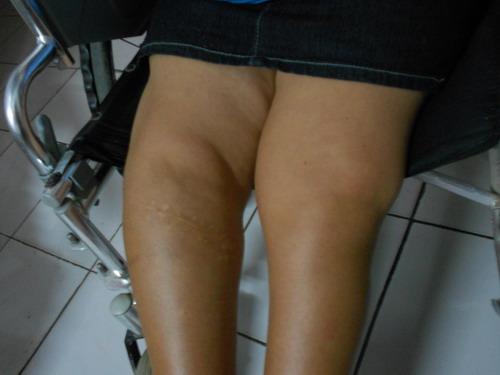 Malformacion en las rodillas y operacion