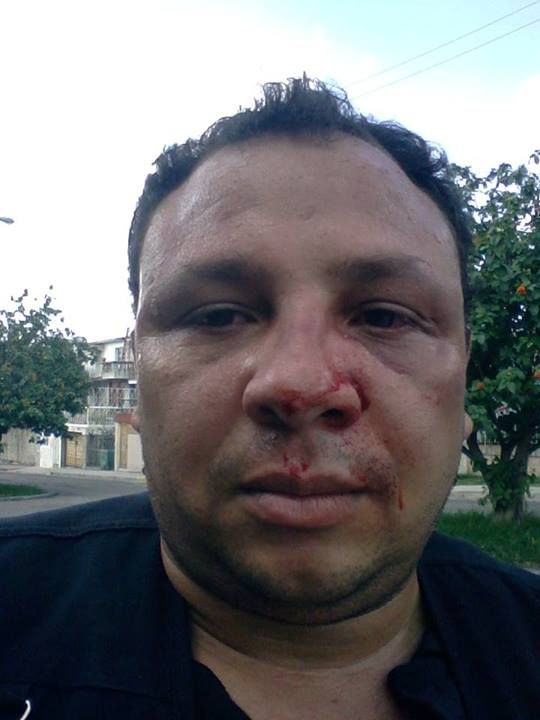Journalist Roberto de Jesus Guerra Perez Beaten / <b>Luis Felipe</b> Rojas - 1403737412_hablemos-press